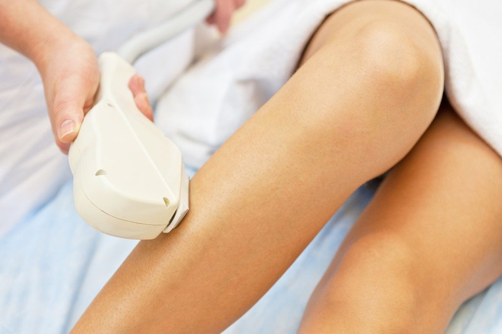 Woman getting a laser hair removal