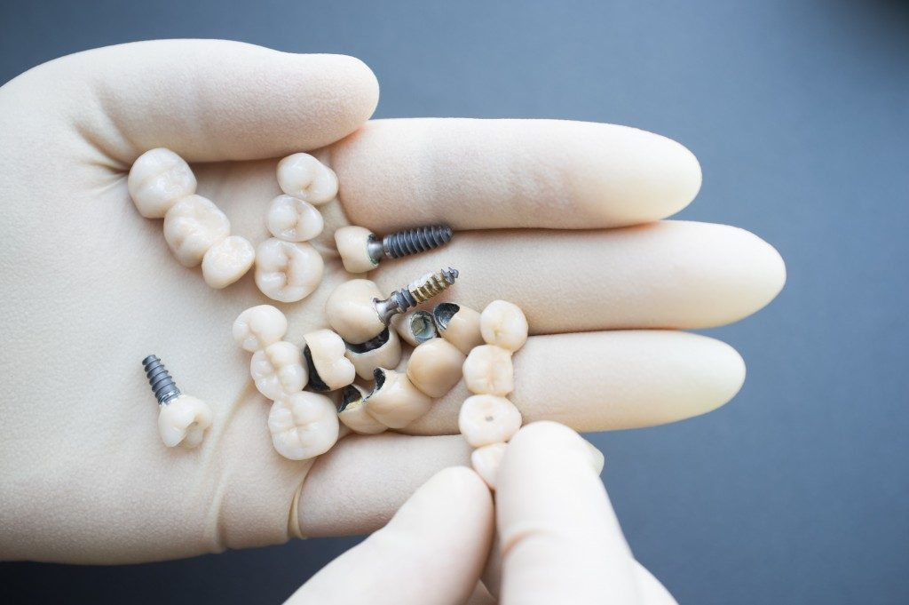 Dentist holding dental implants