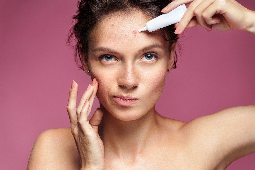girl applying cream to her acne