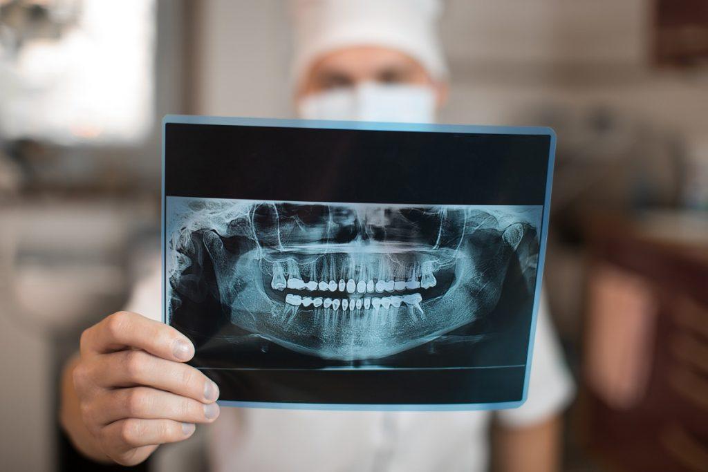 teeth xray