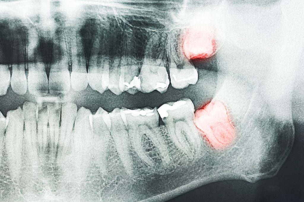 x-ray of a set of teeth